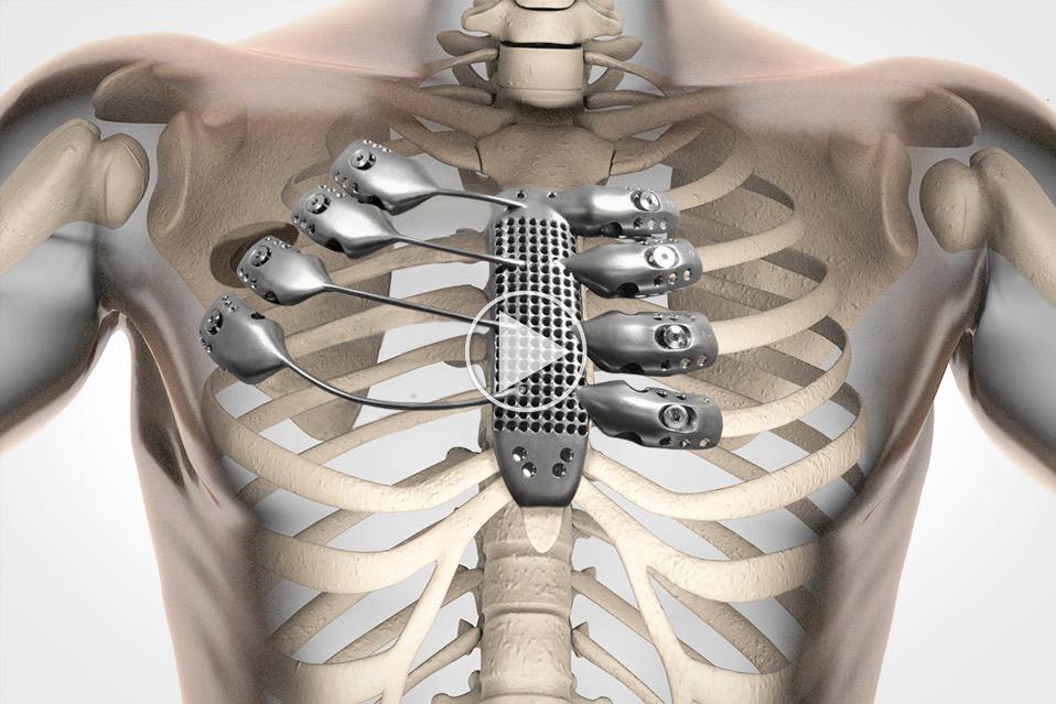 brystkasse-af-titanium_1