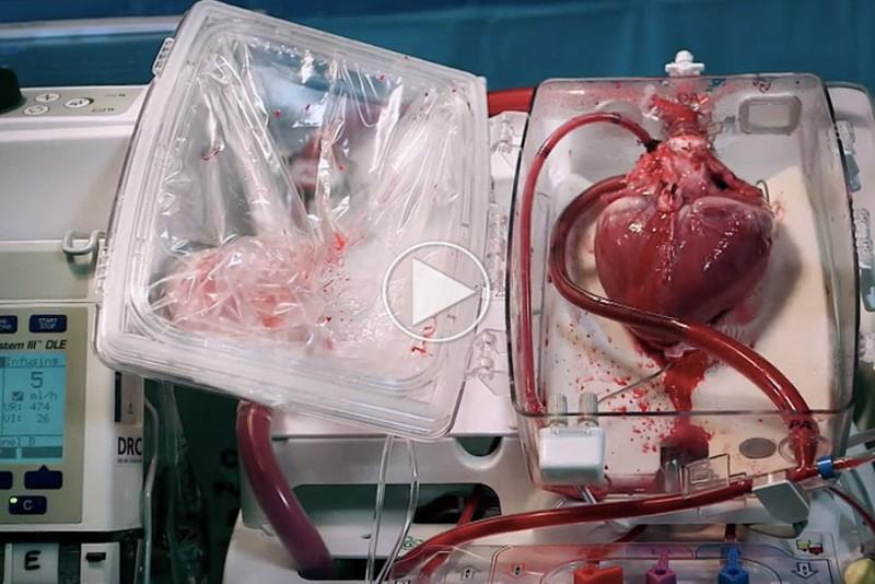 Sadan-transporterer-man-et-bankende-hjerte-til-transplantation_1