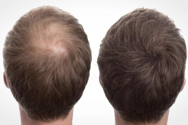 Er du ked af dit tynde hår? Nyt mirakelmiddel skjuler det